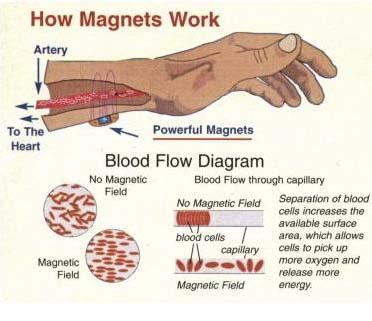 Magneetsieraden - Waarom Energetix kopen